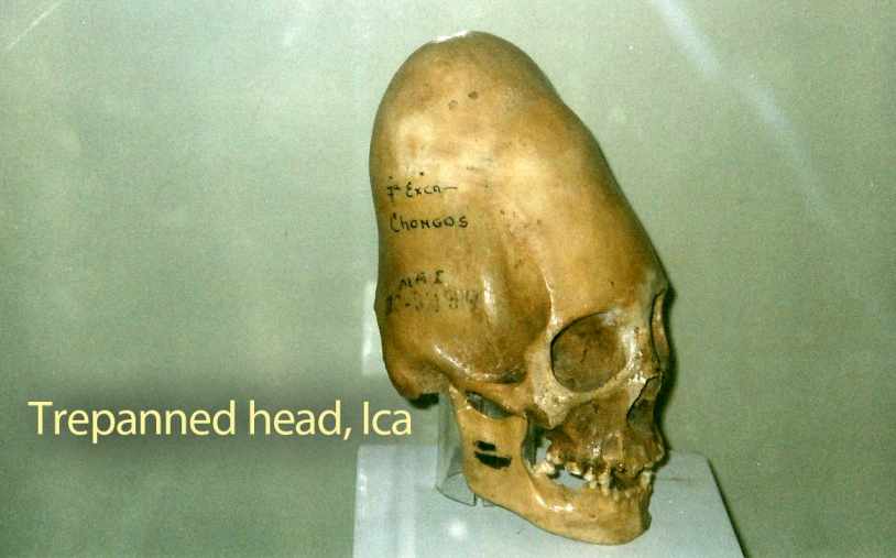 trepanned head